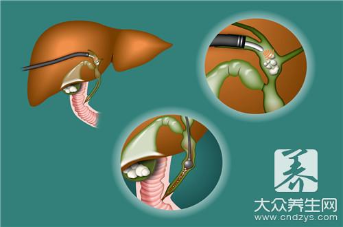 胆总管结石黄疸