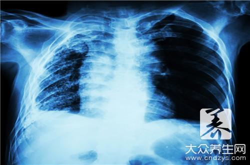 肺不典型腺瘤样增生