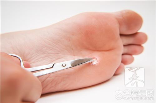 跖疣会传染吗