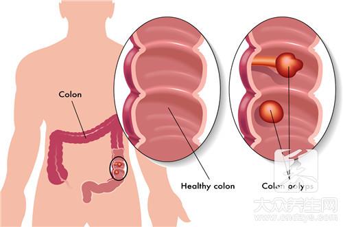 血管瘤介入治疗是什么-第1张