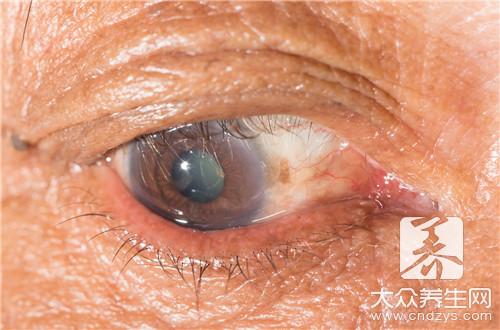 眼睛皮炎用什么药膏-第1张