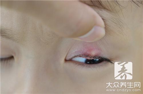 眼睛皮炎用什么药膏-第2张