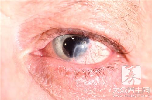眼睛皮炎用什么药膏-第3张