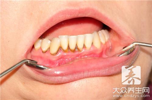 洗牙的好处与坏处